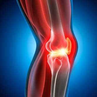 Schematische Darstellung von Arthritis im Knie